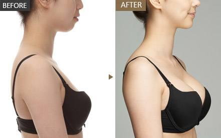 自体脂肪丰胸案例